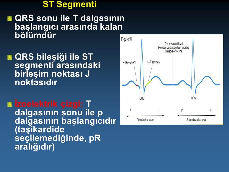 ST Segmenti QRS sonu ile T dalgasının başlangıcı arasında kalan bölümdür. QRS bileşiği ile ST segmenti arasındaki birleşim noktası J noktasıdır.