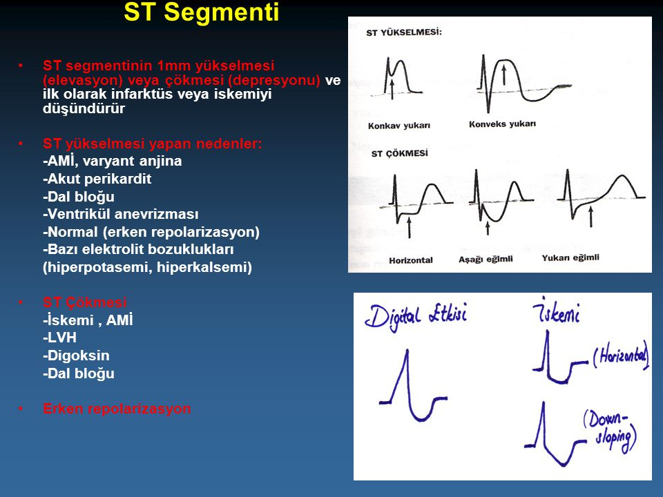 ST Segmenti ST segmentinin 1mm yükselmesi (elevasyon) veya çökmesi (depresyonu) ve ilk olarak infarktüs veya iskemiyi düşündürür.