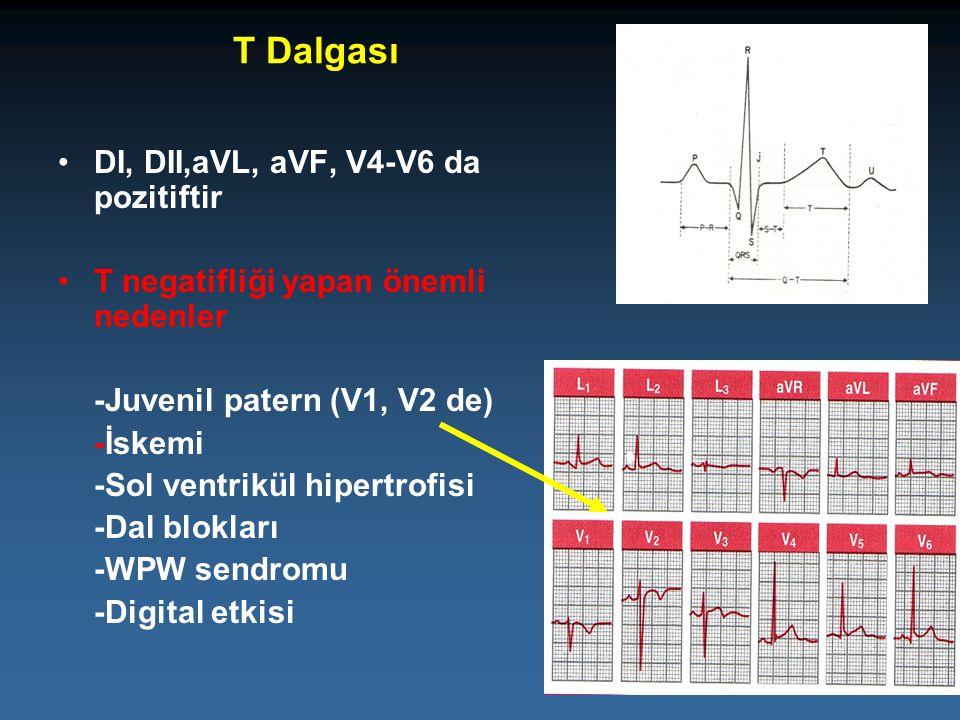 T Dalgası DI, DII,aVL, aVF, V4-V6 da pozitiftir