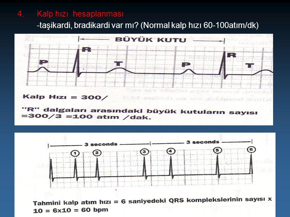 4. Kalp hızı hesaplanması
