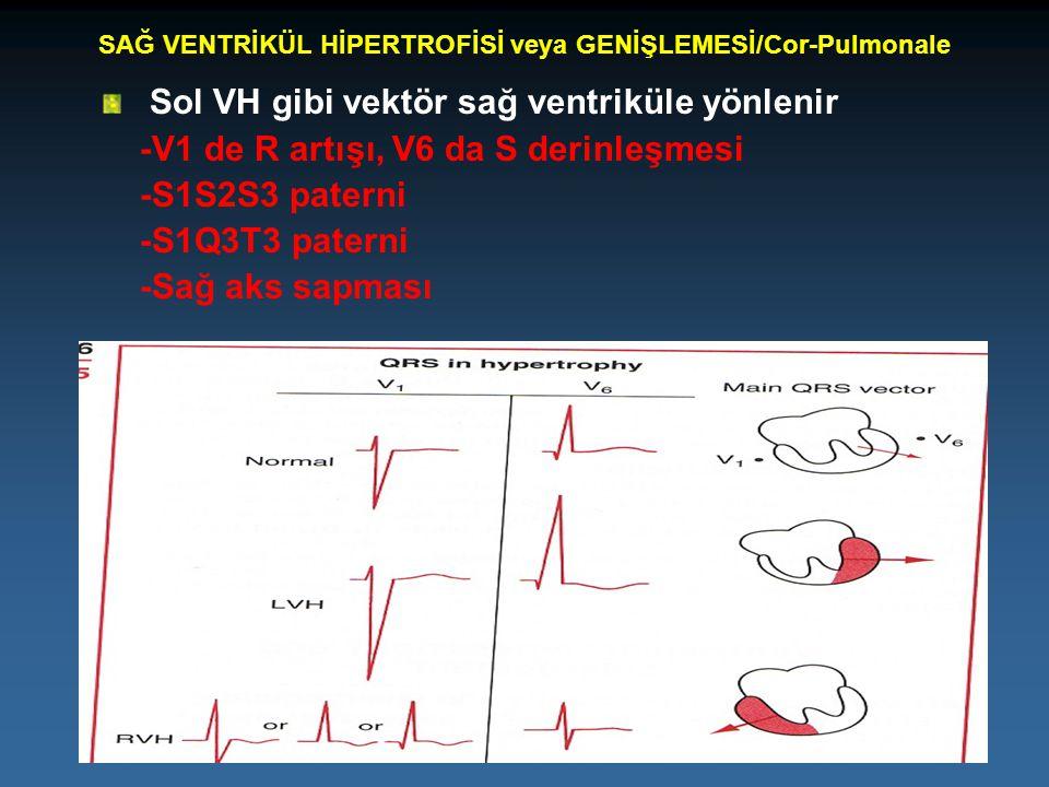 SAĞ VENTRİKÜL HİPERTROFİSİ veya GENİŞLEMESİ/Cor-Pulmonale