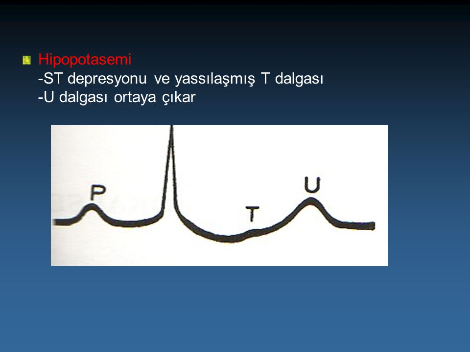 Hipopotasemi -ST depresyonu ve yassılaşmış T dalgası -U dalgası ortaya çıkar