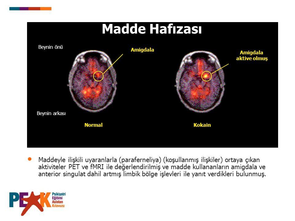 Madde Hafızası Beynin önü. Amigdala. Amigdala aktive olmuş. Beynin arkası. Normal. Kokain. Slide 10: The memory of drugs.