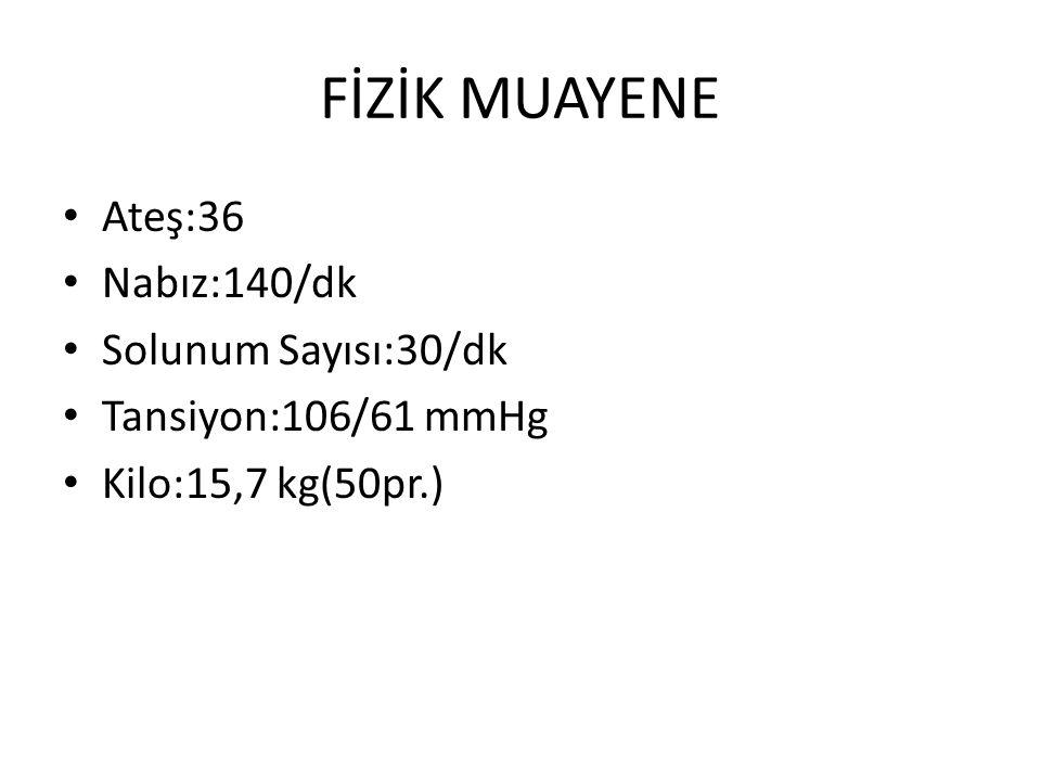 FİZİK MUAYENE Ateş:36 Nabız:140/dk Solunum Sayısı:30/dk