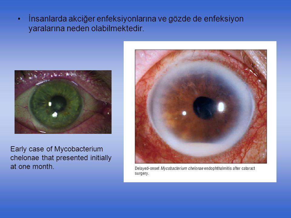 İnsanlarda akciğer enfeksiyonlarına ve gözde de enfeksiyon yaralarına neden olabilmektedir.