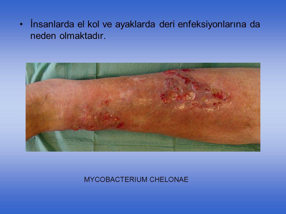 İnsanlarda el kol ve ayaklarda deri enfeksiyonlarına da neden olmaktadır.