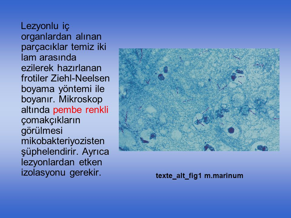 Lezyonlu iç organlardan alınan parçacıklar temiz iki lam arasında ezilerek hazırlanan frotiler Ziehl-Neelsen boyama yöntemi ile boyanır. Mikroskop altında pembe renkli çomakçıkların görülmesi mikobakteriyozisten şüphelendirir. Ayrıca lezyonlardan etken izolasyonu gerekir.