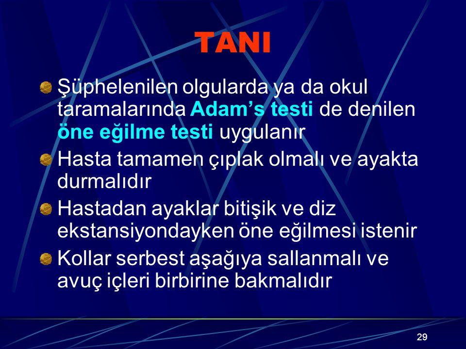 TANI Şüphelenilen olgularda ya da okul taramalarında Adam's testi de denilen öne eğilme testi uygulanır.
