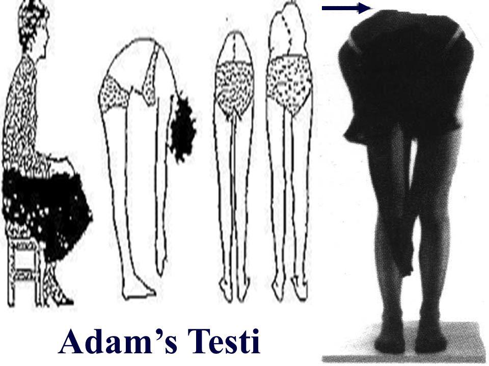 Adam's Testi