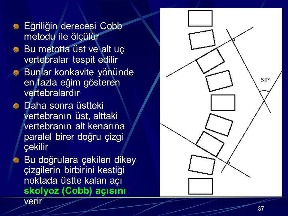 Eğriliğin derecesi Cobb metodu ile ölçülür