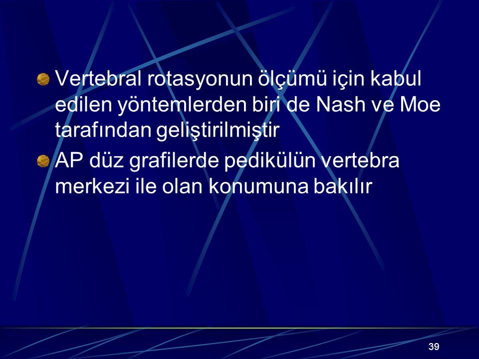 Vertebral rotasyonun ölçümü için kabul edilen yöntemlerden biri de Nash ve Moe tarafından geliştirilmiştir