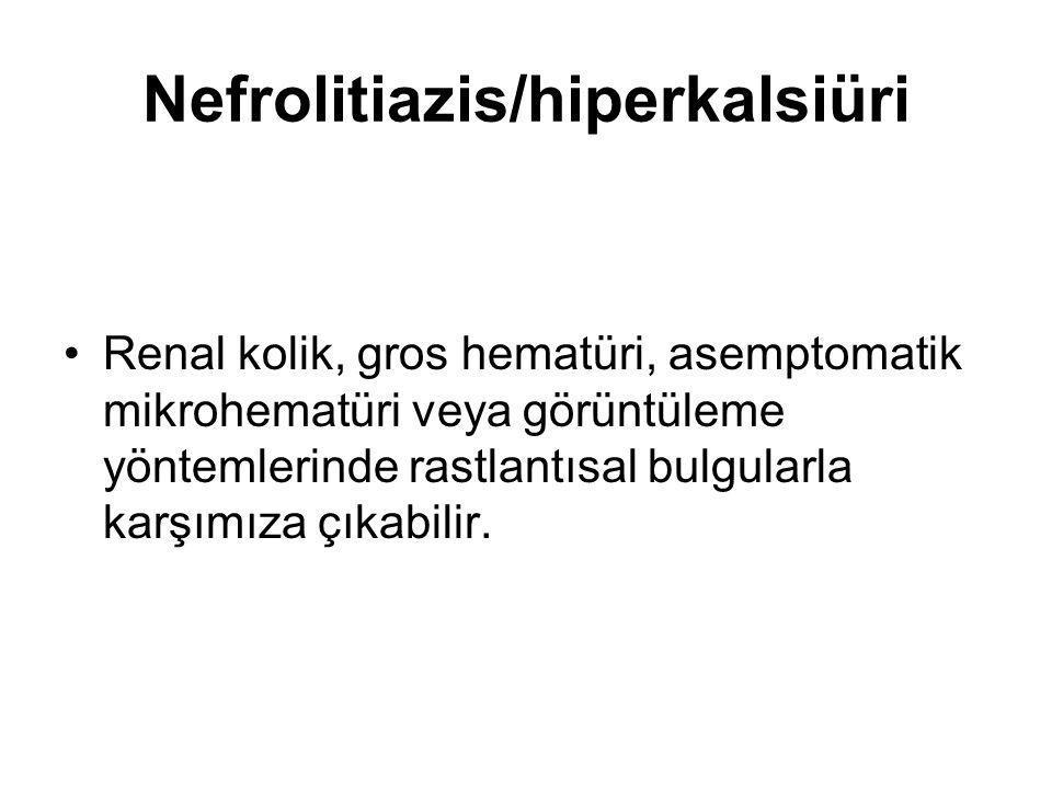 Nefrolitiazis/hiperkalsiüri