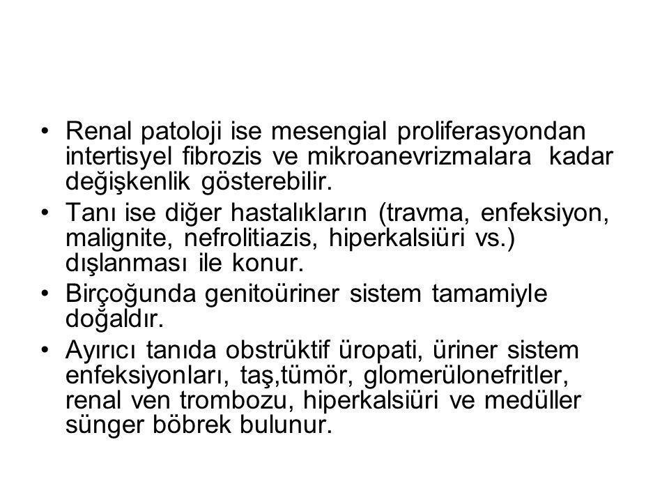 Renal patoloji ise mesengial proliferasyondan intertisyel fibrozis ve mikroanevrizmalara kadar değişkenlik gösterebilir.