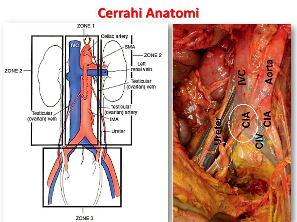 Cerrahi Anatomi