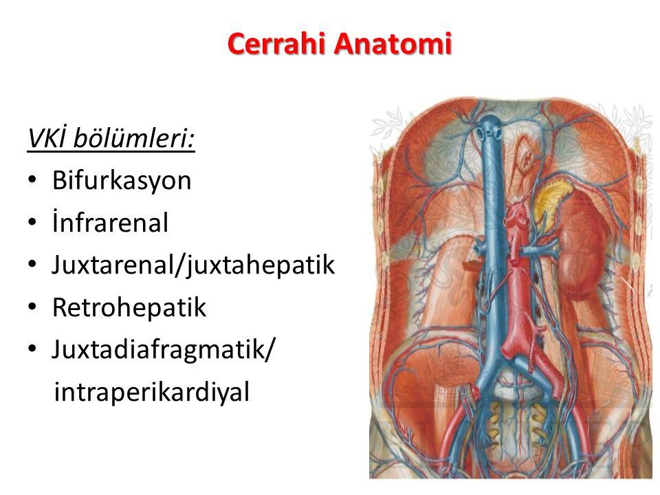 Cerrahi Anatomi VKİ bölümleri: Bifurkasyon İnfrarenal