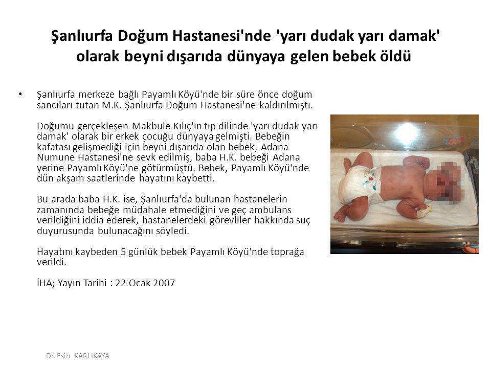 Şanlıurfa Doğum Hastanesi nde yarı dudak yarı damak olarak beyni dışarıda dünyaya gelen bebek öldü
