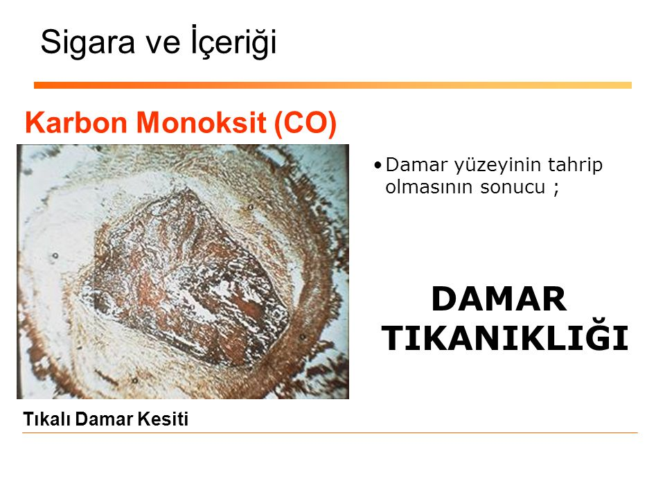 Sigara ve İçeriği DAMAR TIKANIKLIĞI Karbon Monoksit (CO)