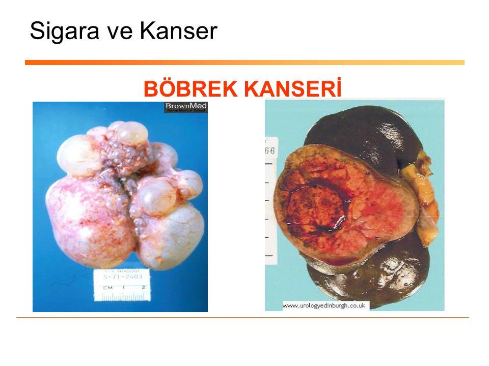 Sigara ve Kanser BÖBREK KANSERİ