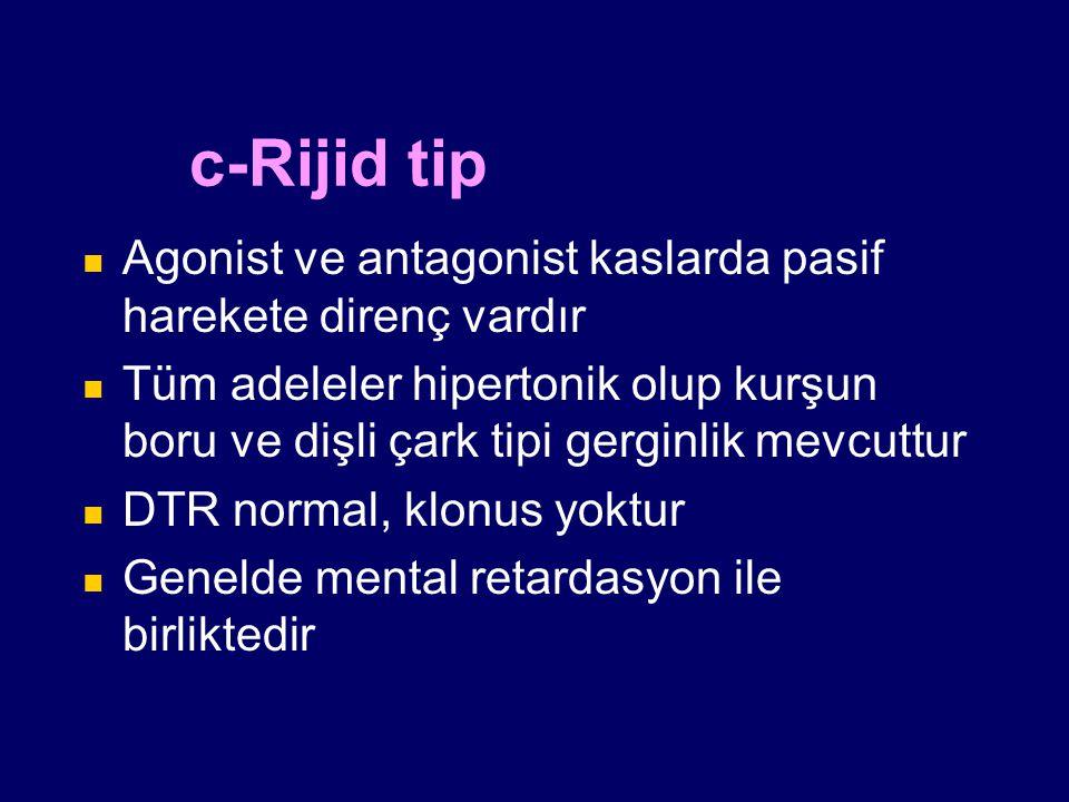 c-Rijid tip Agonist ve antagonist kaslarda pasif harekete direnç vardır.