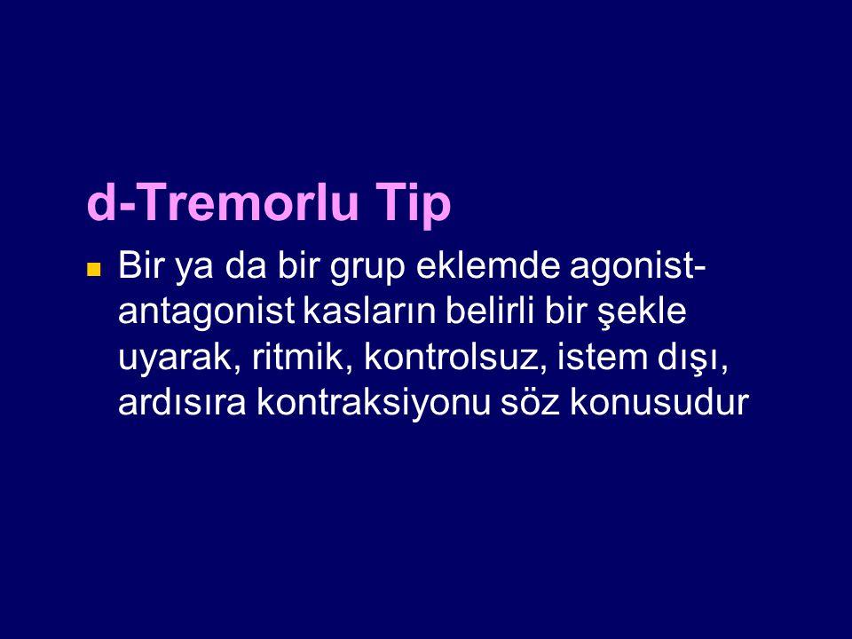 d-Tremorlu Tip