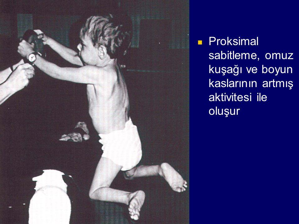 Proksimal sabitleme, omuz kuşağı ve boyun kaslarının artmış aktivitesi ile oluşur