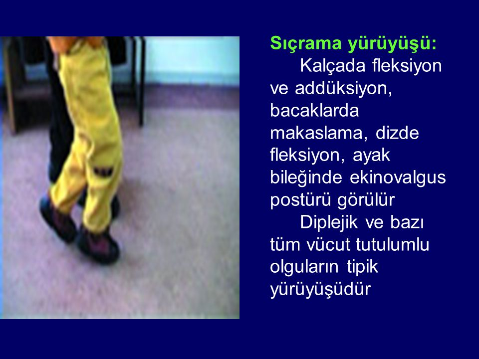 Sıçrama yürüyüşü: Kalçada fleksiyon ve addüksiyon, bacaklarda makaslama, dizde fleksiyon, ayak bileğinde ekinovalgus postürü görülür Diplejik ve bazı tüm vücut tutulumlu olguların tipik yürüyüşüdür