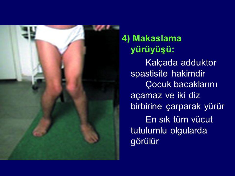 4) Makaslama yürüyüşü: Kalçada adduktor spastisite hakimdir Çocuk bacaklarını açamaz ve iki diz birbirine çarparak yürür.