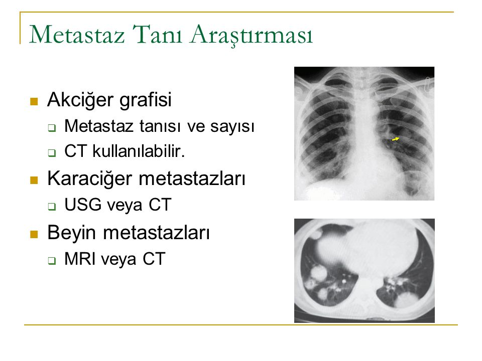 Metastaz Tanı Araştırması