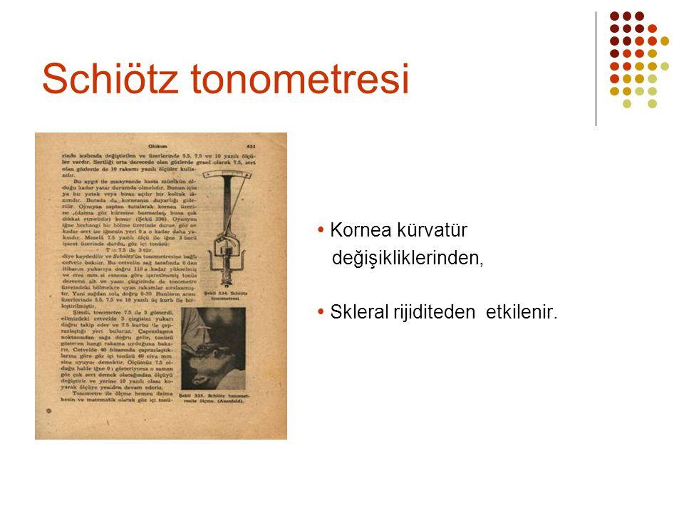 Schiötz tonometresi  Kornea kürvatür değişikliklerinden,