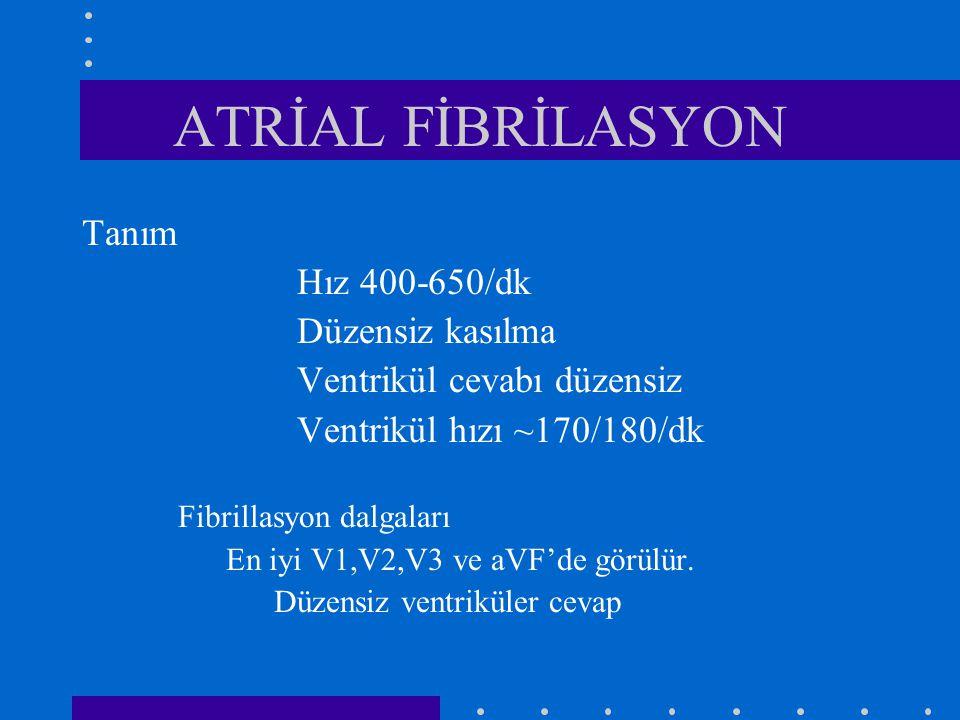 ATRİAL FİBRİLASYON Tanım Hız 400-650/dk Düzensiz kasılma