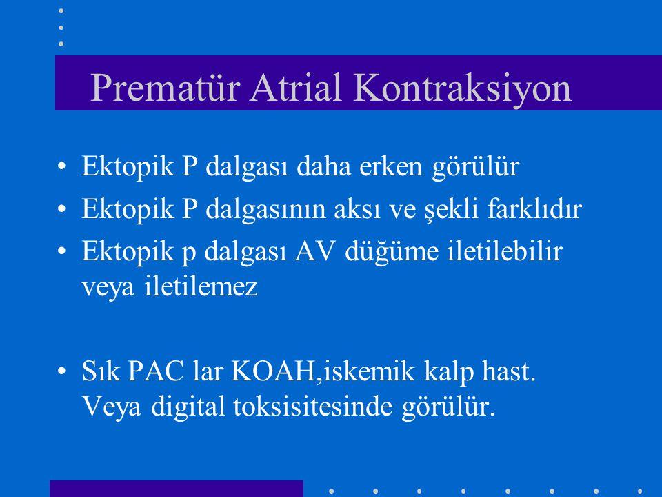 Prematür Atrial Kontraksiyon