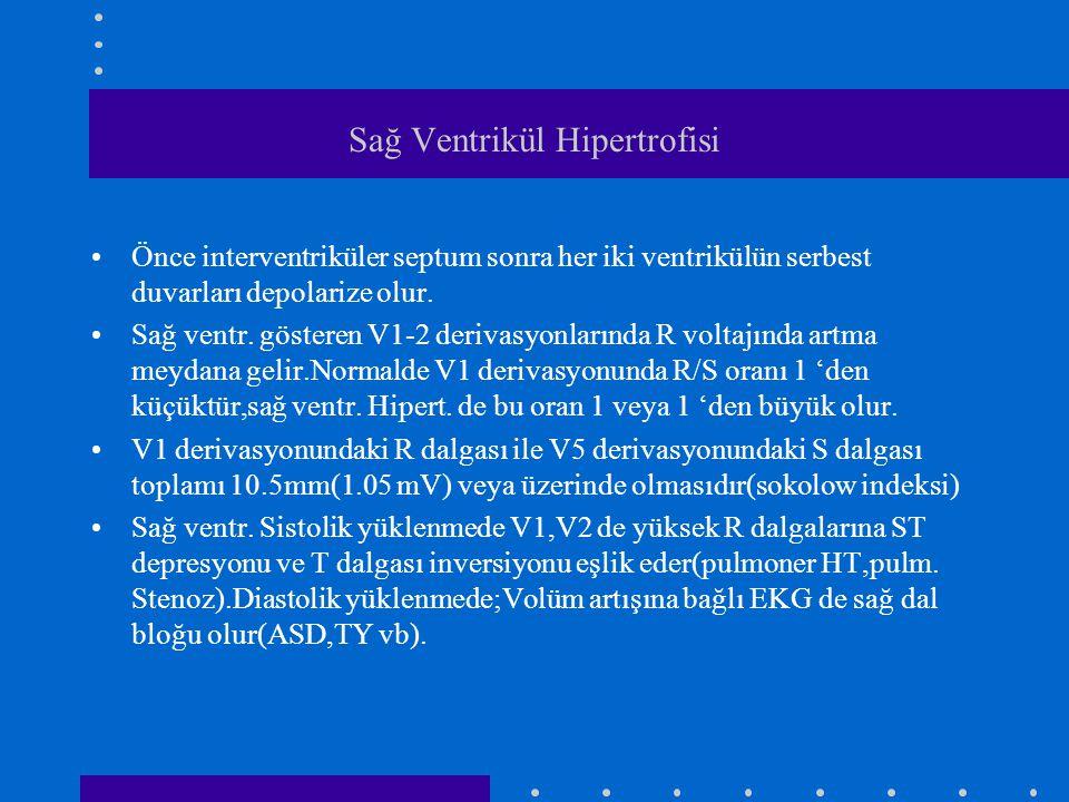 Sağ Ventrikül Hipertrofisi