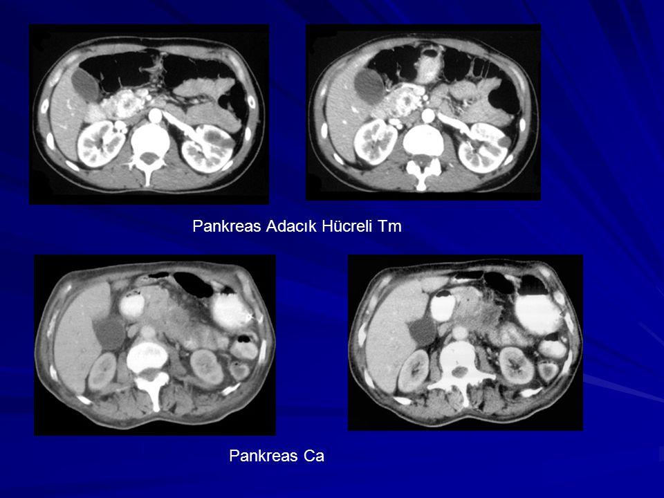 Pankreas Adacık Hücreli Tm