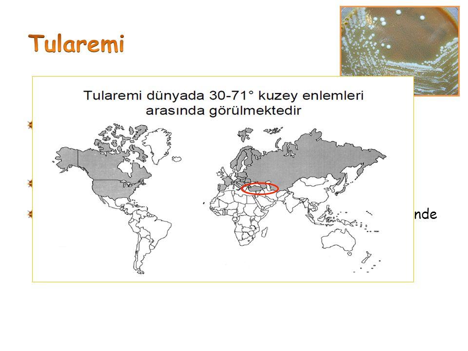 Tularemi Tularemi, enfektivitesi çok yüksek bir bakteri olan Francisella tularensis' in oluşturduğu.