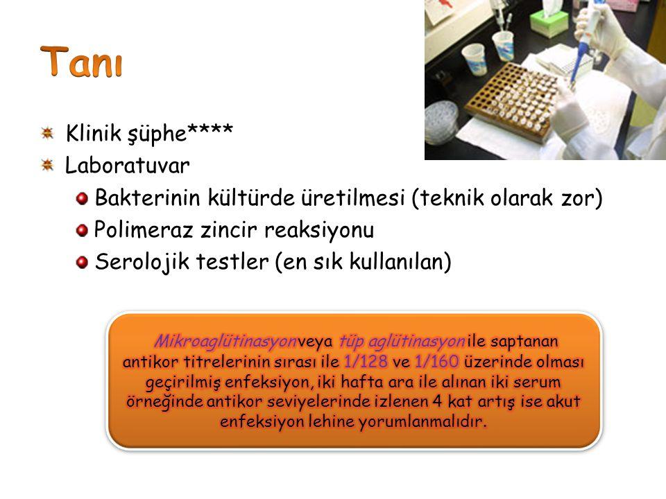 Tanı Klinik şüphe**** Laboratuvar