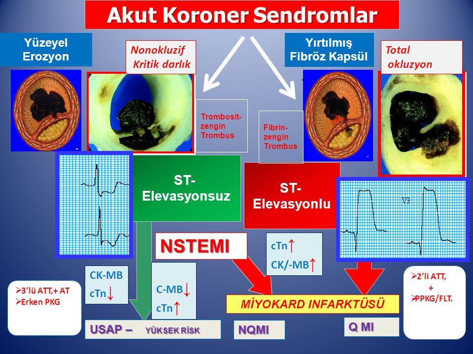 Akut Koroner Sendromlar Yırtılmış Fibröz Kapsül