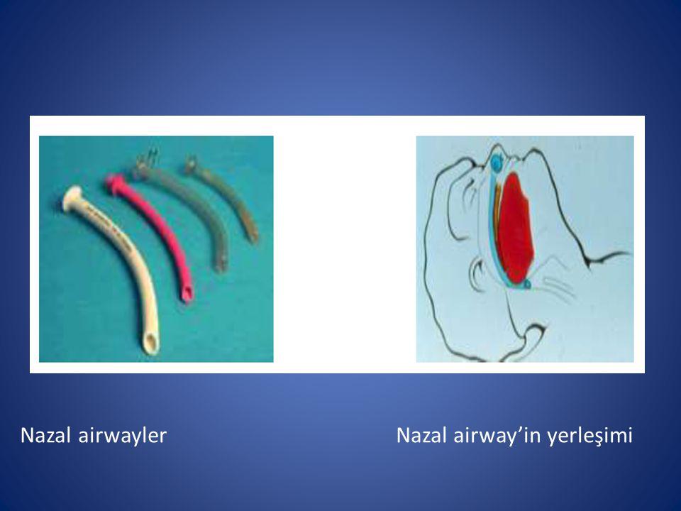 Nazal airwayler Nazal airway'in yerleşimi