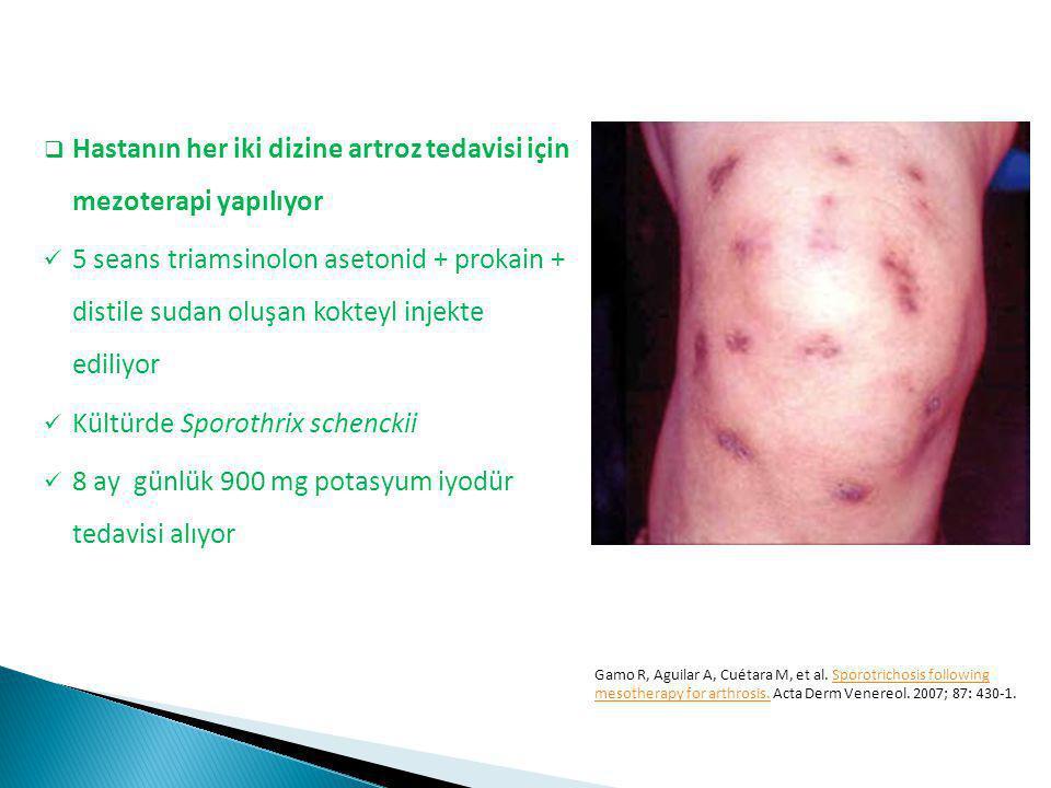 Hastanın her iki dizine artroz tedavisi için mezoterapi yapılıyor