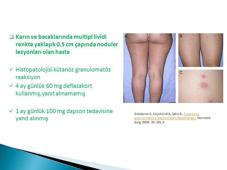 Histopatolojisi kütanöz granulomatöz reaksiyon