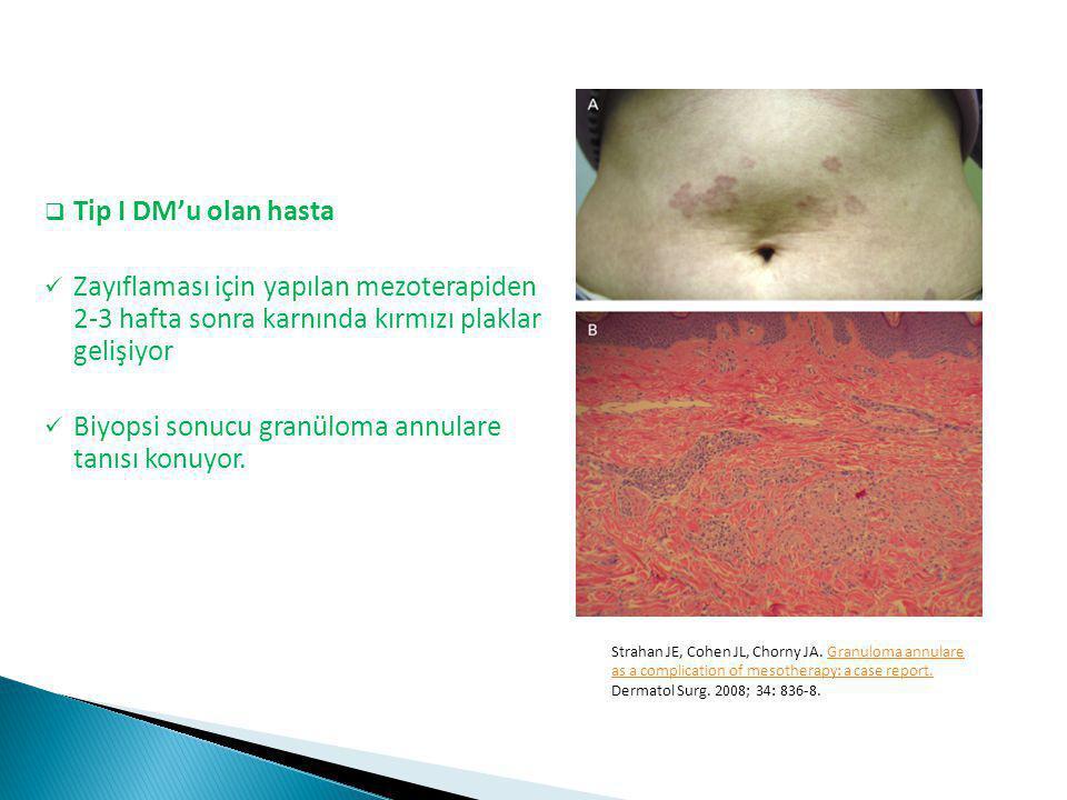 Biyopsi sonucu granüloma annulare tanısı konuyor.