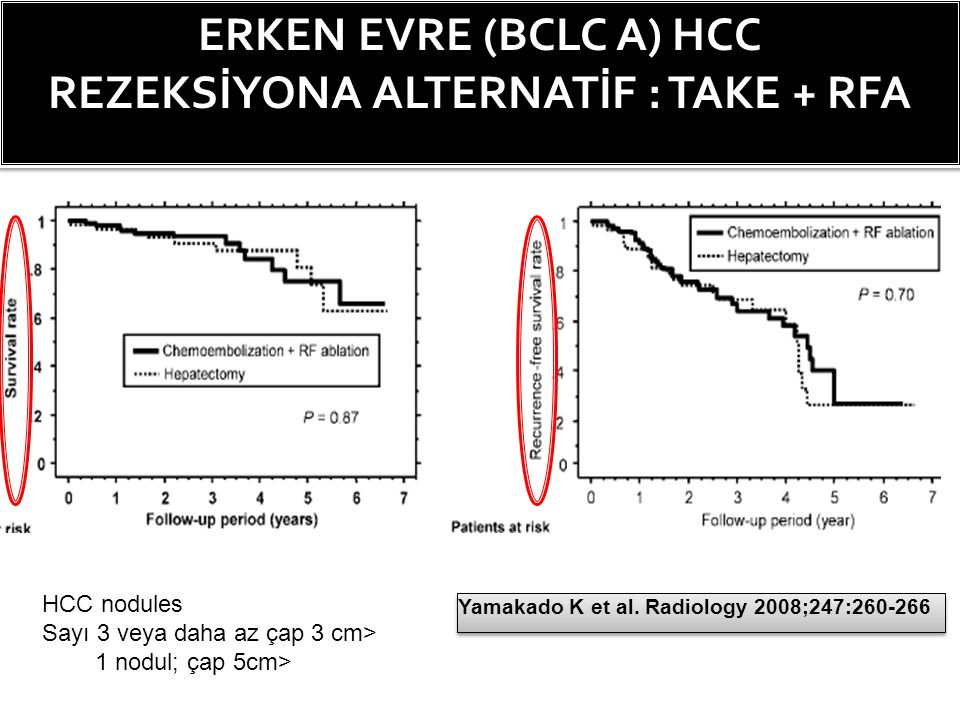 ERKEN EVRE (BCLC A) HCC REZEKSİYONA ALTERNATİF : TAKE + RFA