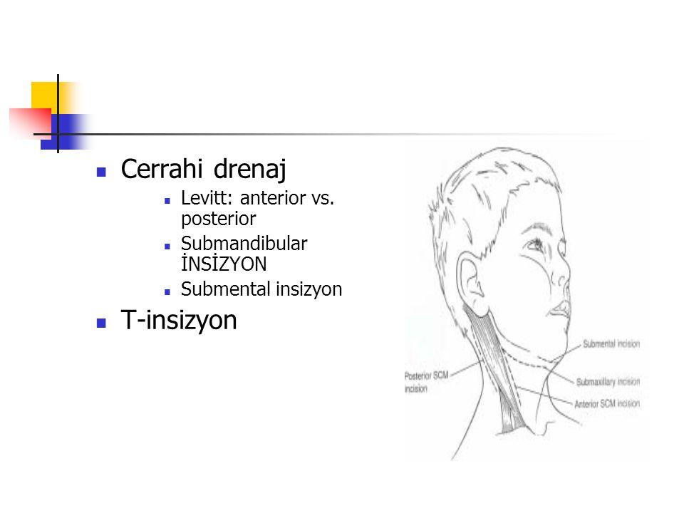 Cerrahi drenaj T-insizyon Levitt: anterior vs. posterior