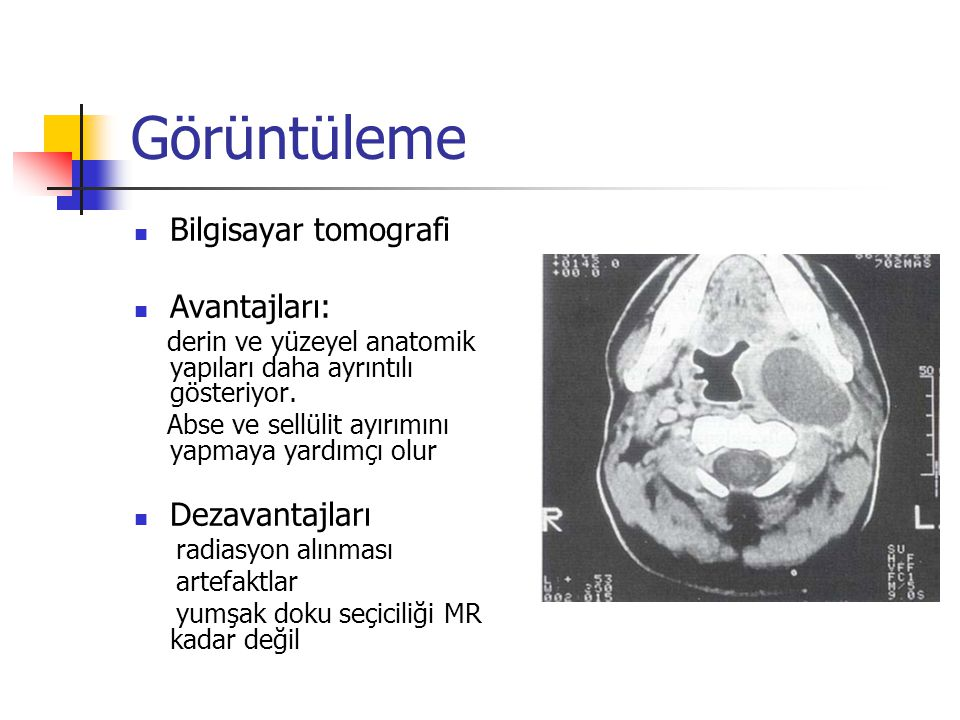 Görüntüleme Bilgisayar tomografi Avantajları: Dezavantajları