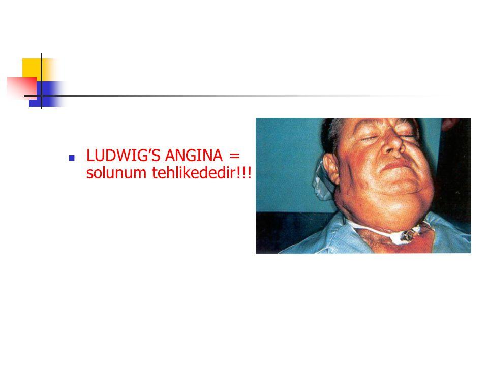 LUDWIG'S ANGINA = solunum tehlikededir!!!