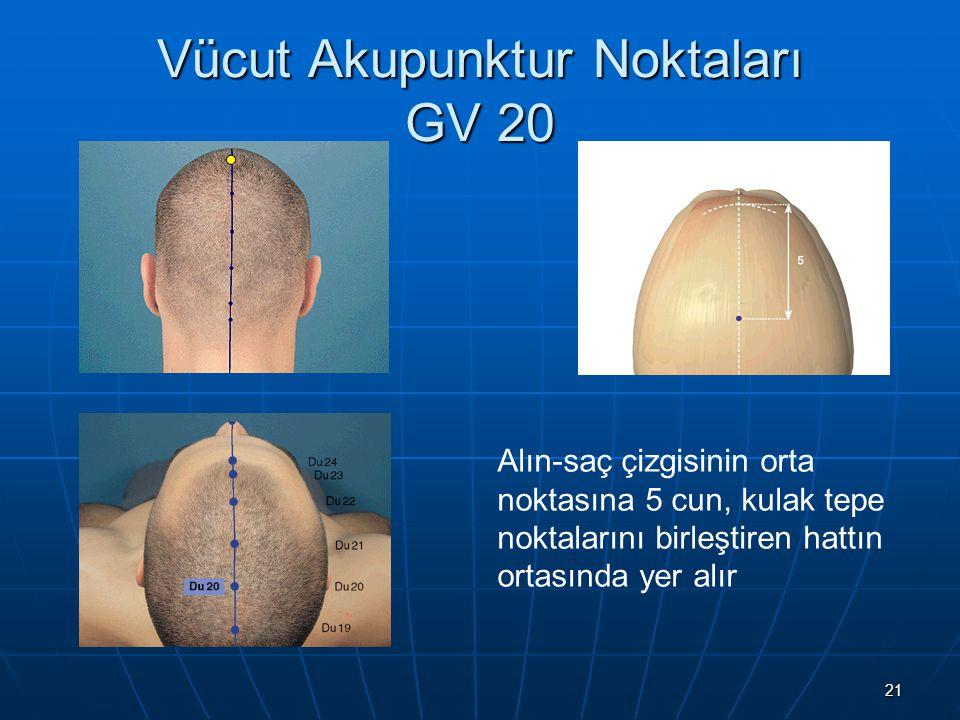 Vücut Akupunktur Noktaları GV 20