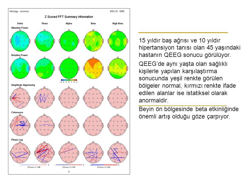 15 yıldır baş ağrısı ve 10 yıldır hipertansiyon tanısı olan 45 yaşındaki hastanın QEEG sonucu görülüyor.