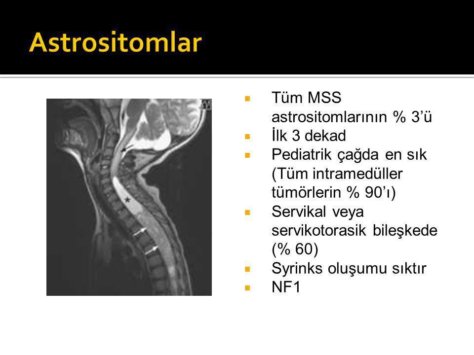 Astrositomlar Tüm MSS astrositomlarının % 3'ü İlk 3 dekad