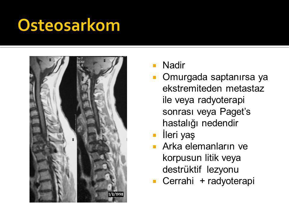 Osteosarkom Nadir. Omurgada saptanırsa ya ekstremiteden metastaz ile veya radyoterapi sonrası veya Paget's hastalığı nedendir.