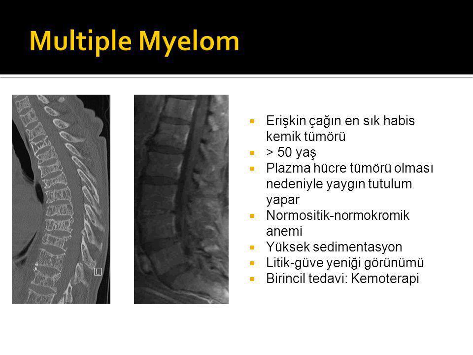 Multiple Myelom Erişkin çağın en sık habis kemik tümörü > 50 yaş