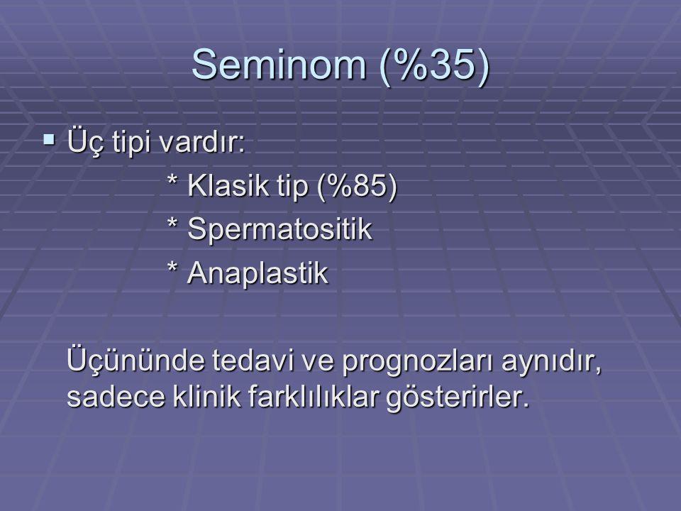 Seminom (%35) Üç tipi vardır: * Klasik tip (%85) * Spermatositik